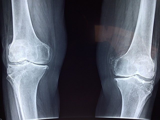איך מונעים כאבי מפרקים נוספים לאחר ניתוח החלפת מפרק?